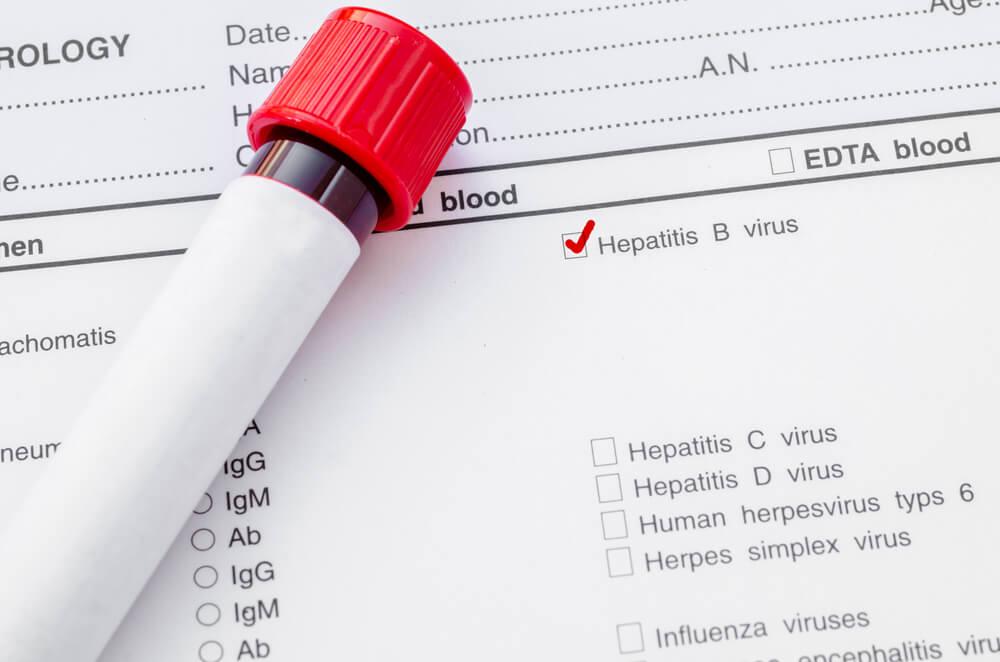 B型肝炎による肝がんについて知る前に|B型肝炎ウイルスとは?