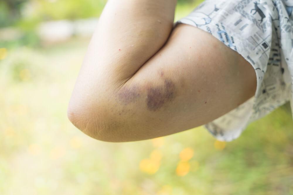 法律から見る高齢者虐待の分類と定義