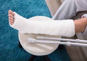 交通事故で骨折した際の注意点|適切な賠償を受けるためのポイント