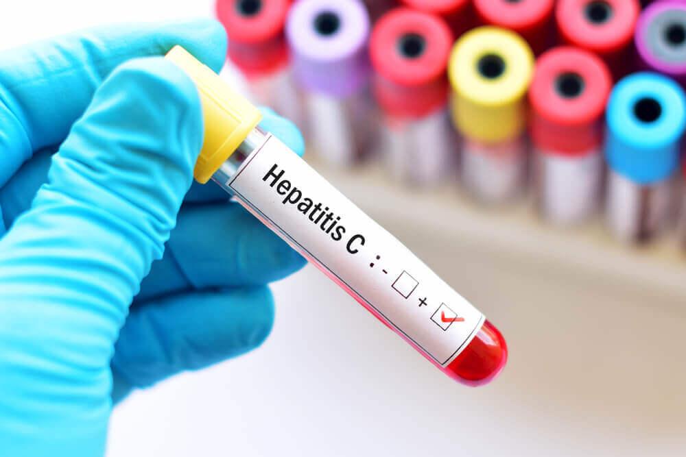 世界肝炎デーで知っておきたい|C型肝炎とは?やさしく解説
